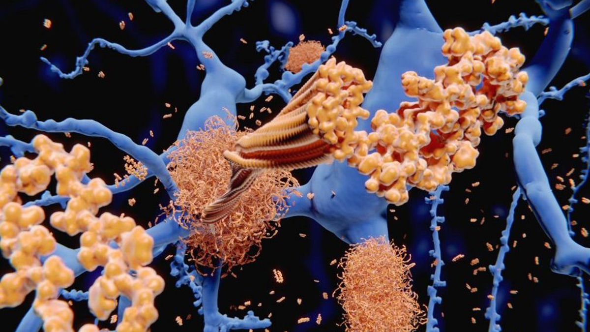 Enlarged rendering of Alzheimers amyloid